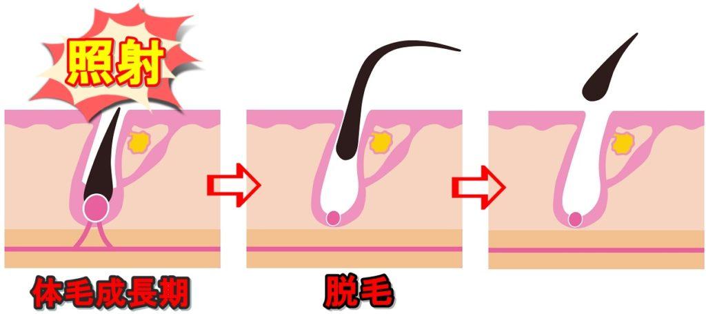 脱毛器ケノン効果的な使い方